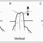 diagram showing how to perform scar tissue massage for sports hernia