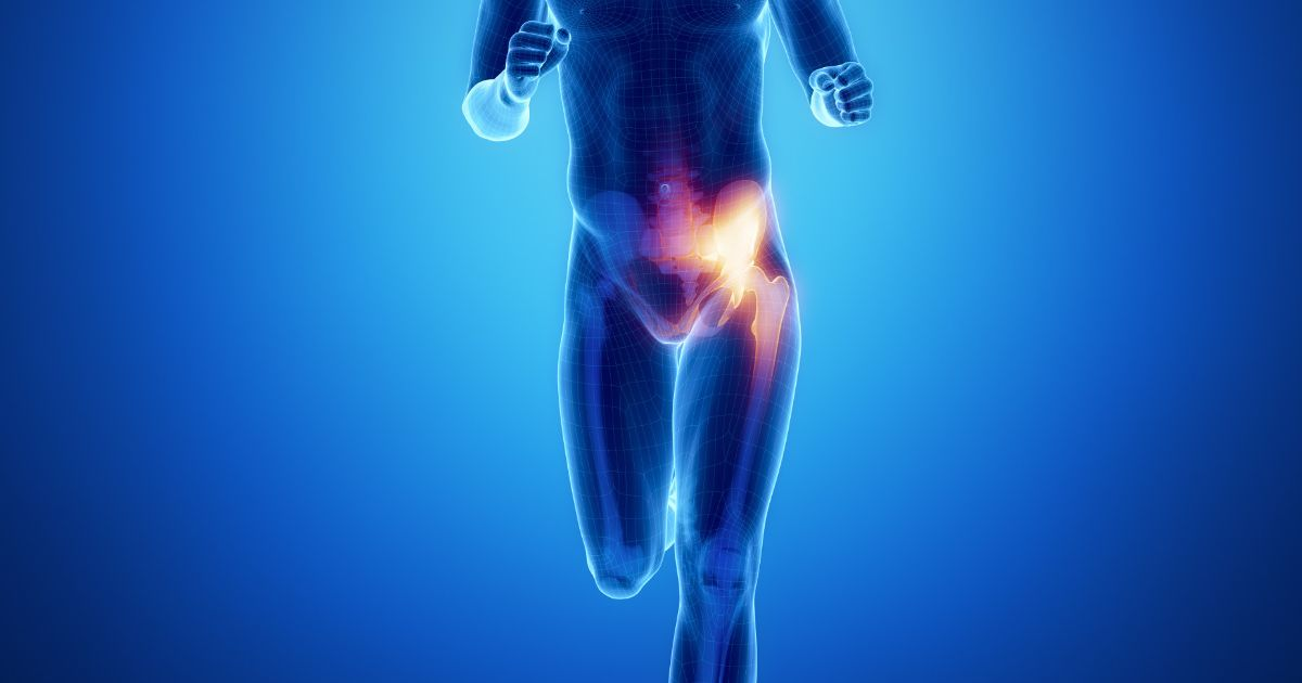 Your sports hernia recovery time will greatly depend on your ability to follow the correct steps.