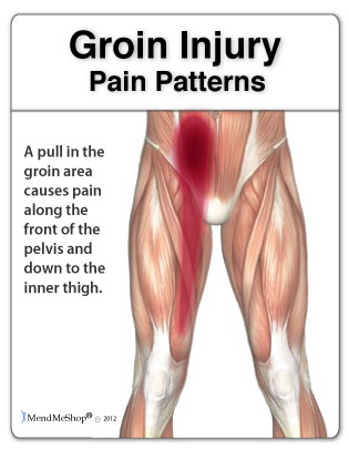 Diagram showing pain in the groin area and how far it can radiate down the leg and up into the abdominal area