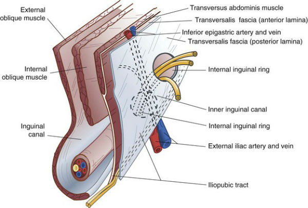 diagram highlighting weaknesses in the posterior inguinal wall leading to sports hernia testicular pain