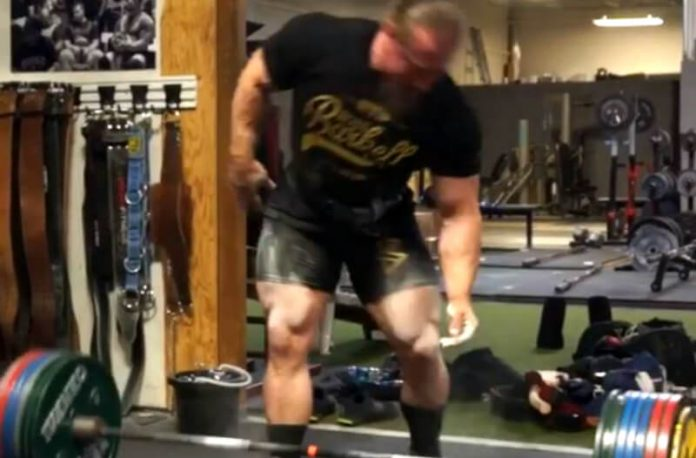 Dan Green Injured Himself on Deadlifts and later finds his bicep ruptured