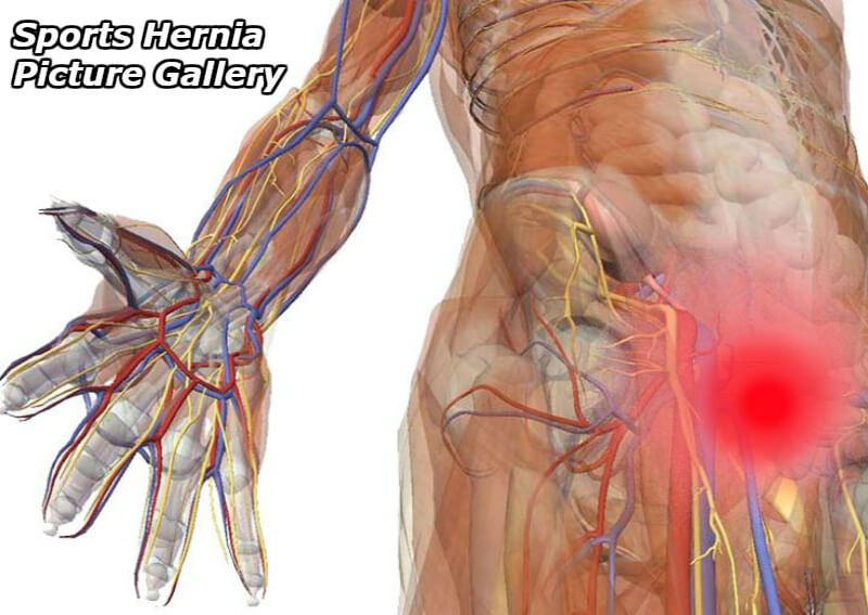 sports hernia pictures gallery intro