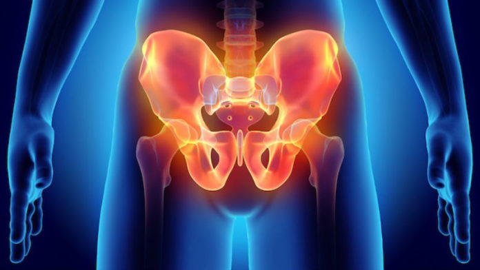 sports hernia symptoms described as sharp pain in the groin region