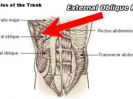 diagram displaying where external oblique pain is most common and outlines the different areas of a strain vs hernia
