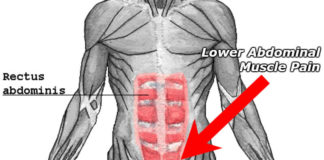 what a pulled lower abdominal muscle feels like shown in red on diagram displaying muscles of abdomen and groin