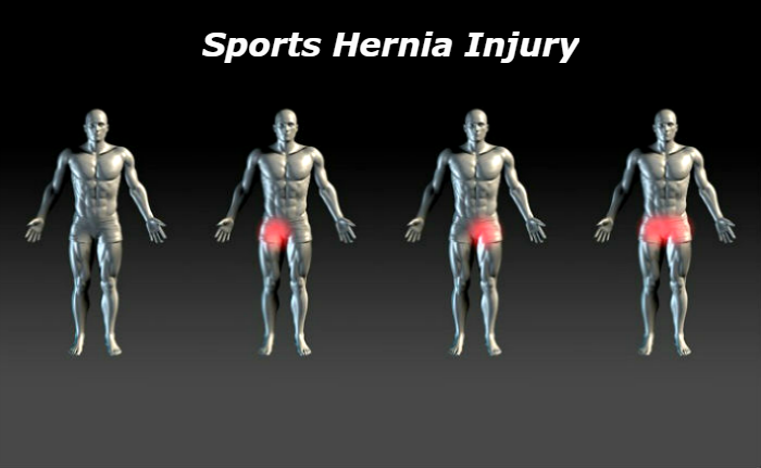 patients diagnosed with a sports hernia stand in a line awaiting treatment from a specialist trained in the acute symptoms of athletic pubalgia