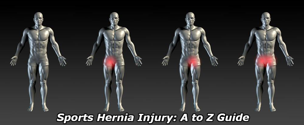 Sports Hernia Injury: A Complete Full-Scale Review (Athletic